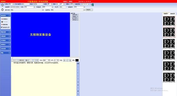 ct影像系统工作站
